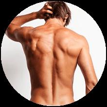 Depilación laser de diodo - Espalda y hombros